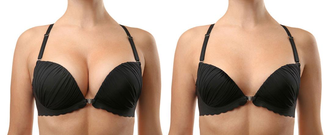 Breast Uplift Surgery Kent