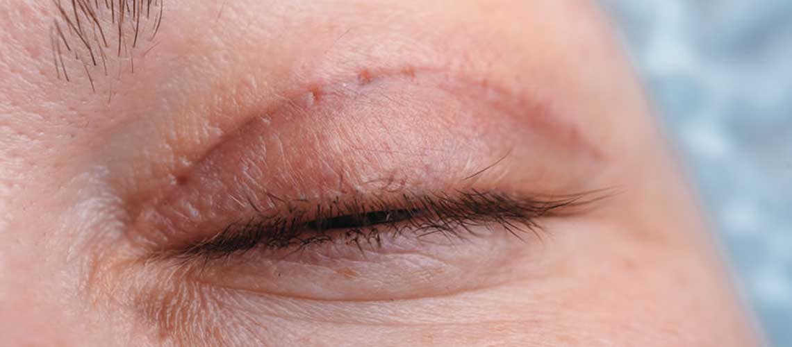 Blepharoplasty and headaches